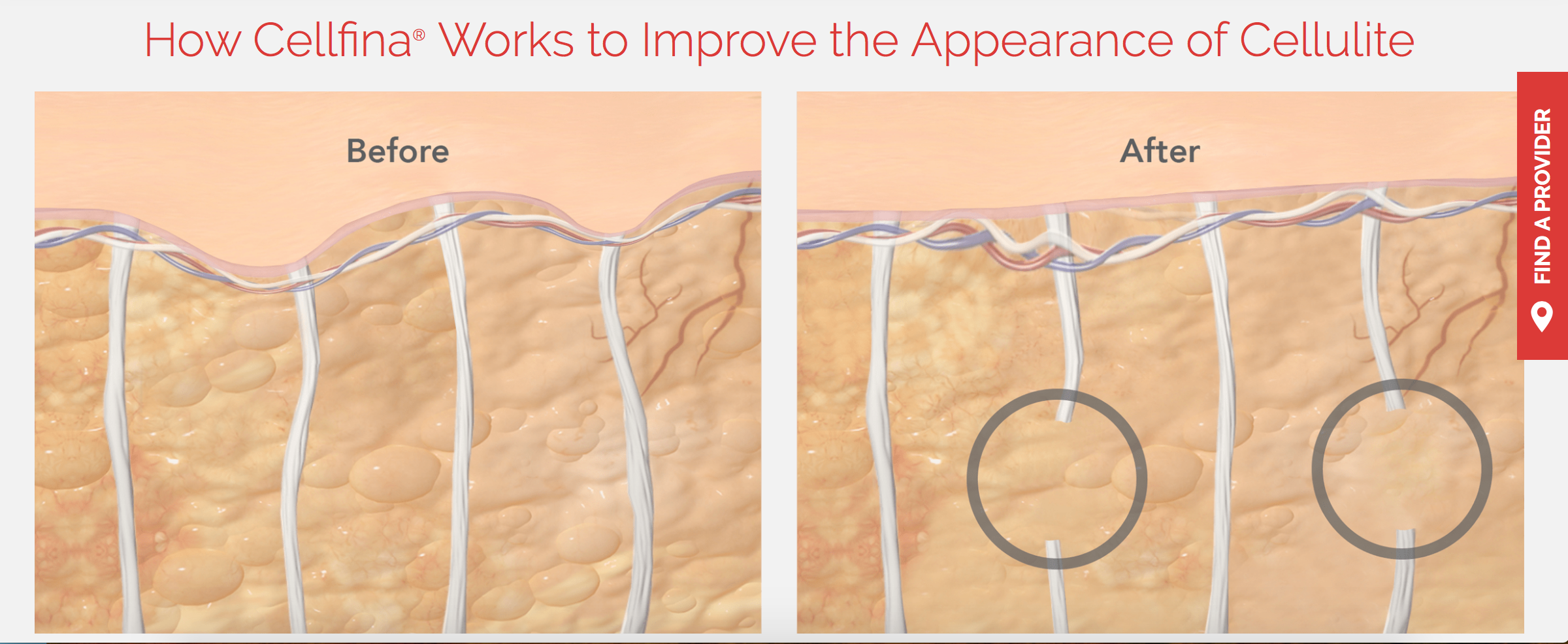 Celulite Treatment and Brazilian Cellulite Treatment in Beverly Hills