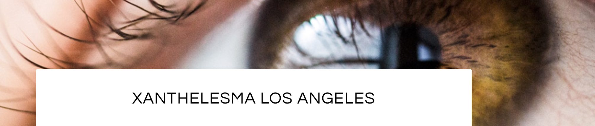 Xanthelesma Removal in Santa Monica and Beverly Hills